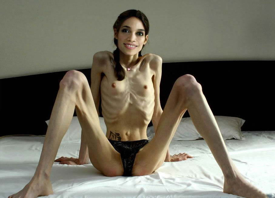 anoreksia porno