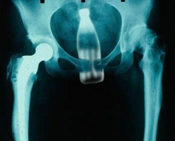 В жопе рентген фото — pic 10