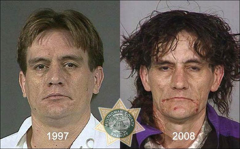 последствия наркотиков фотографии