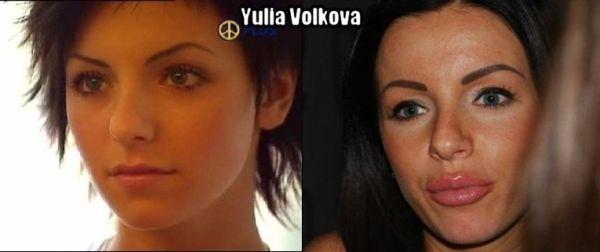 Как хирурги постарались над лицом Юлии Волковой