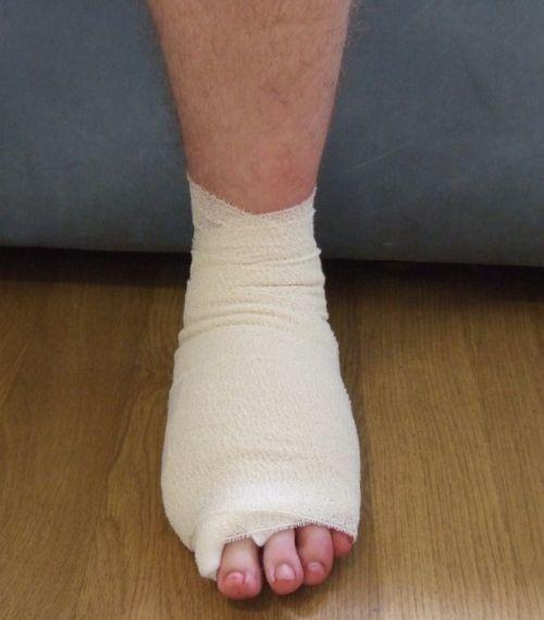 Пересадили большой палец с ноги на руку