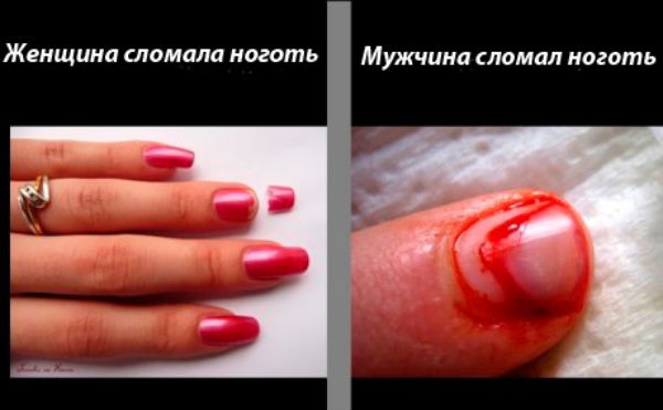 Сломанные в кровь ногти