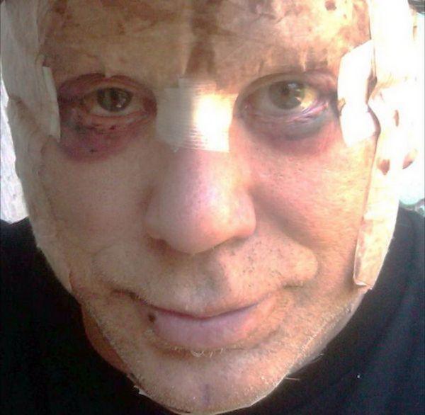 Старина Микки Рурк после очередной пластической операции