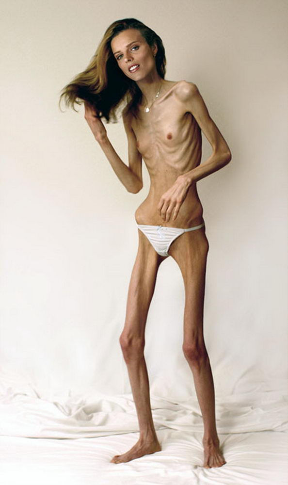 Nude anorexia photos — pic 10