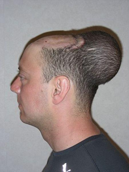 Как мужику надули голову, чтобы избавить от лысины