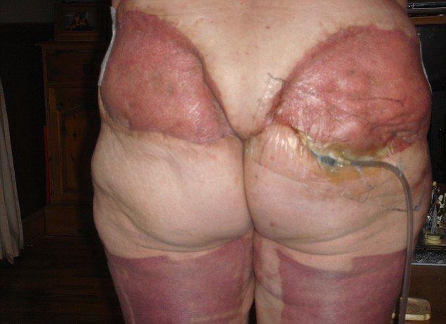 Последствия неудачной операции по удалению лишней кожи