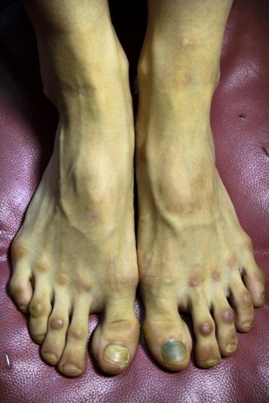 клубах уродливые ступни девушек фото после очередной любовной