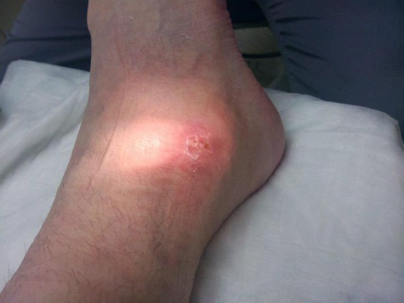 Нога женщины после укуса коричневого паука-отшельника
