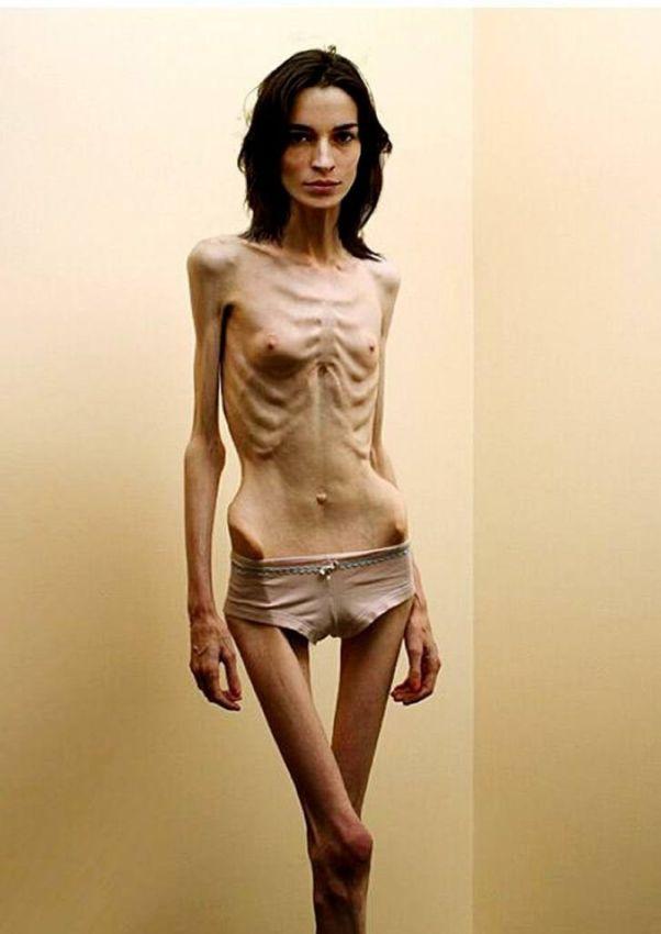 Фото самых худых голых девушек 68327 фотография