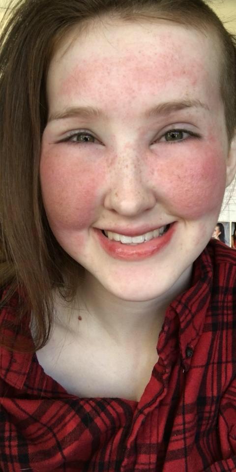 Лицо девушки с аллергией на косметику до и после нанесения макияжа