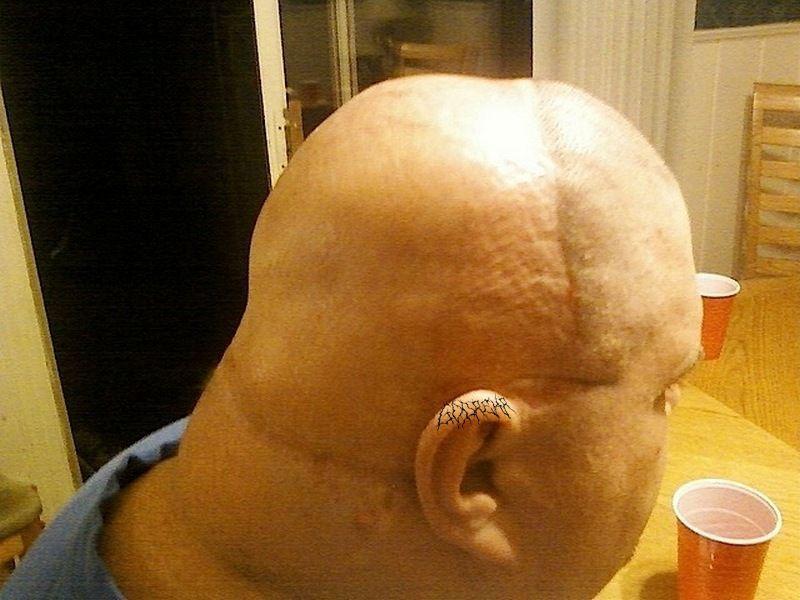 Чтобы убрать целлюлит на голове – нужно снять скальп