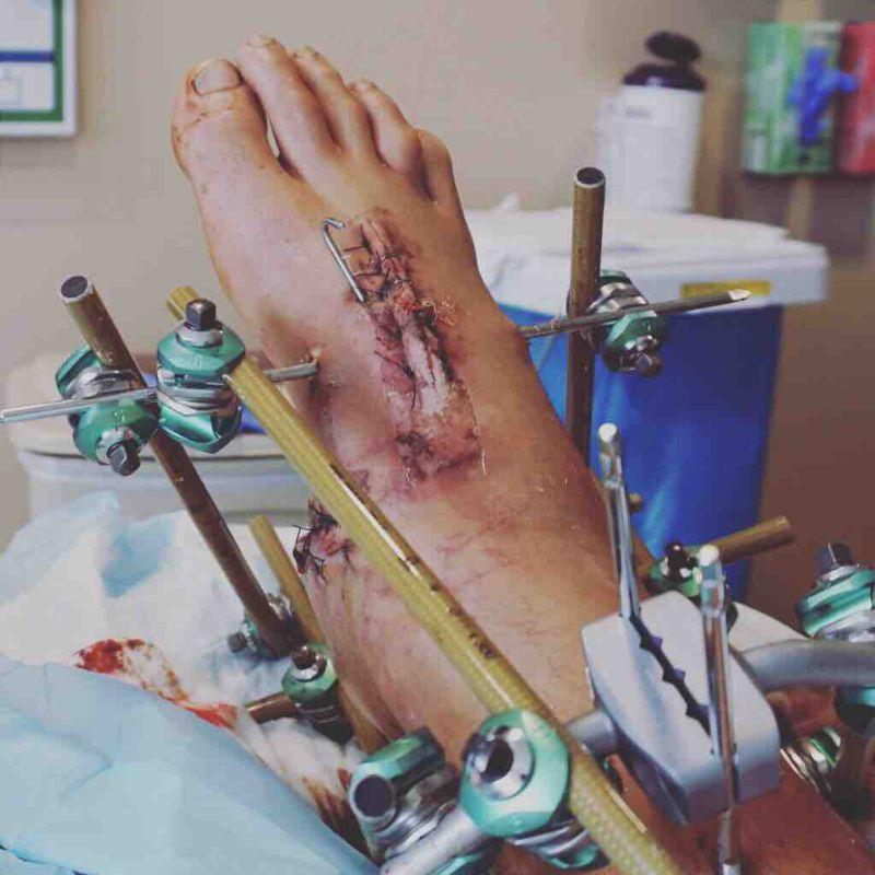 Чамачечий  переломал себе ноги, неудачно прыгнув в бассейн