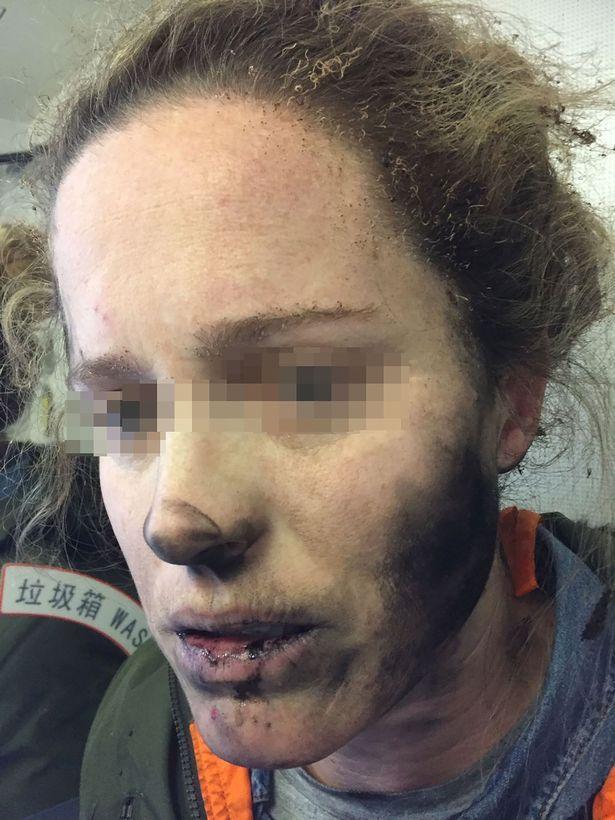 Лицо девушки после взрыва беспроводных наушников