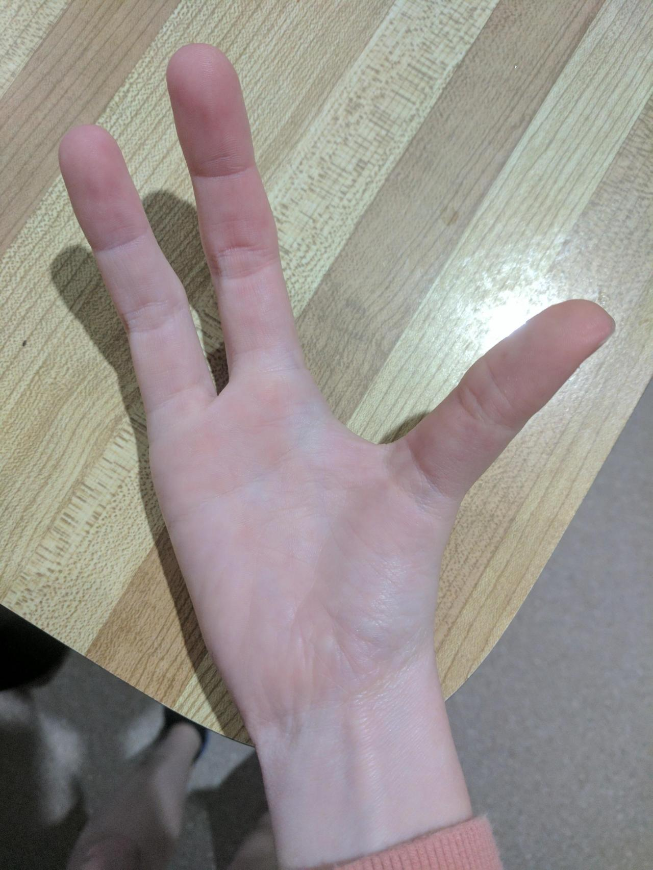 Фото рука без пальцев