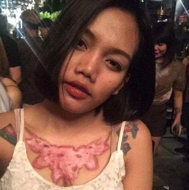 Девушка неудачно удалила татуировку