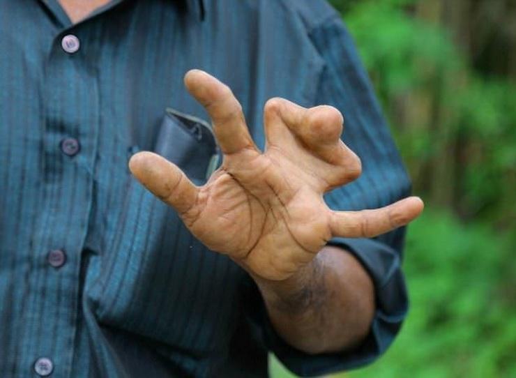 Лучше ходить с сросшимися пальцами, чем оглохнуть