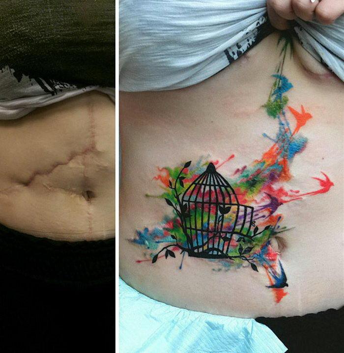 Подборка тату, закрывающих шрамы после операций