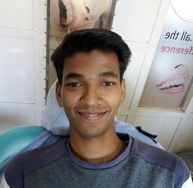 Индийский студент вырастил во рту самый длинный в мире зуб