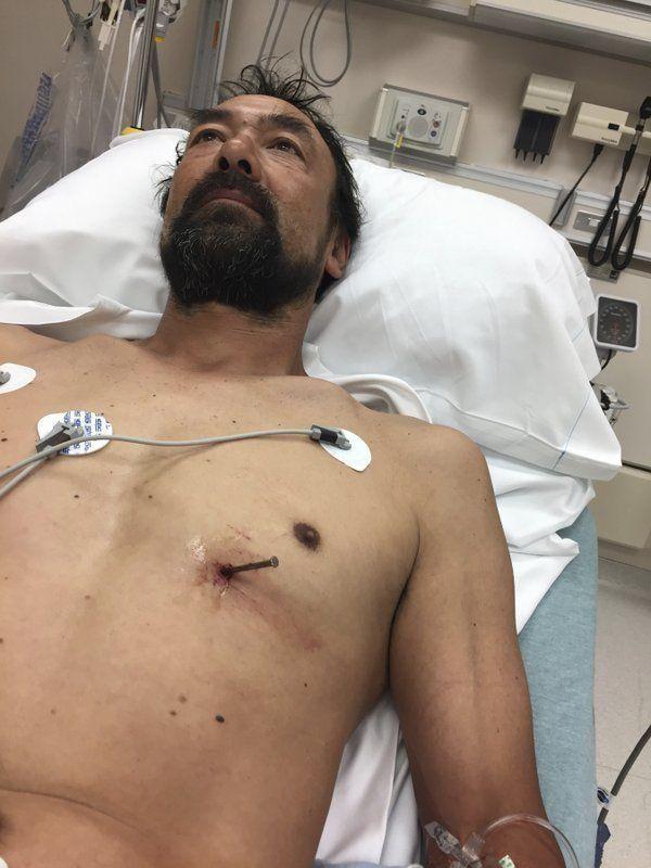 Мужик загнал себе гвоздь в сердце и сам приехал в больницу