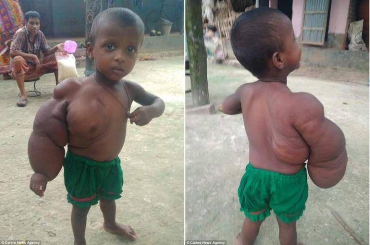 Мальчик с большой рукой