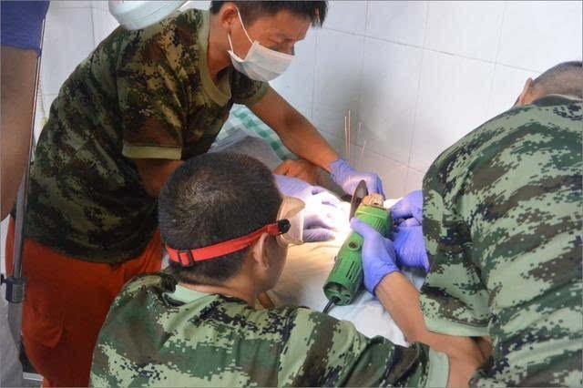 Спасатели выпилили гениталии китайского затейника из гаечного ключа