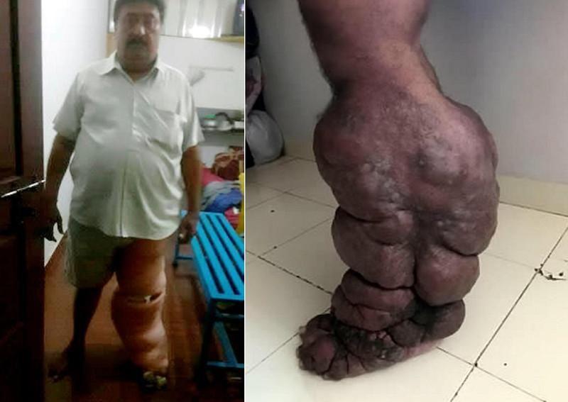 Почему следует опасаться укусов комаров в Индии