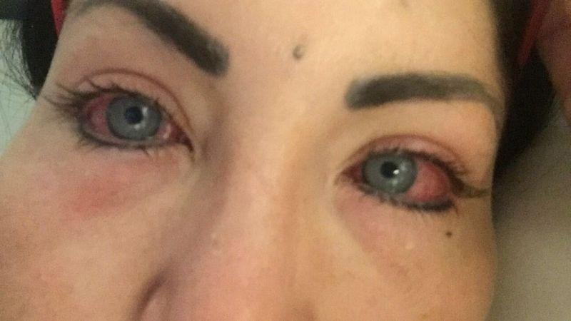 Модель ослепла, изменив цвет глаз с карих на голубые