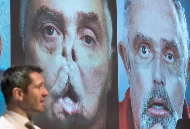 Обезображенный 64-летний канадец получил новое лицо
