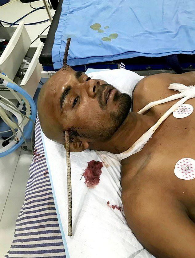 Индийский строитель проткнул голову арматурой и выжил