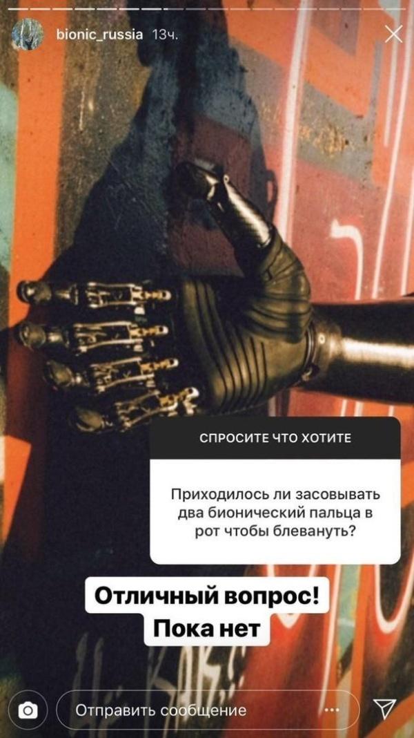 Бионическая рука: вопросы и ответы Всячина
