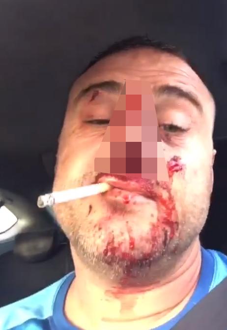 Упал с мотоцикла без шлема Видео