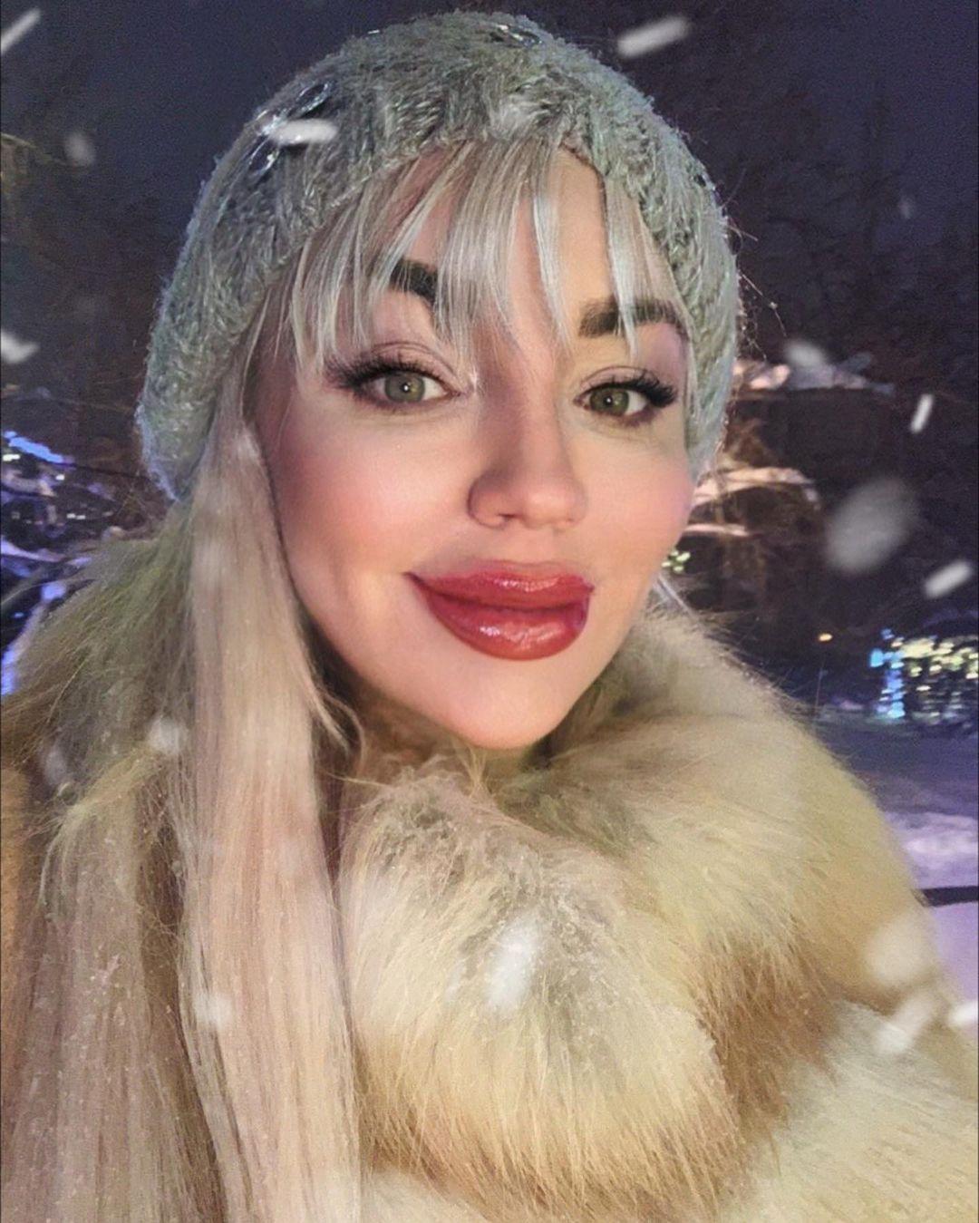 Косметолога из Кемерова судят за то, что она изуродовала девушку Всячина
